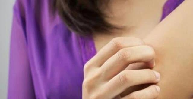 身上莫名其妙的淤青,可能是肝病信号,还有一个症状多数人不知道